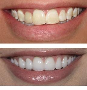 Teeth Whitening Bleaching in Delhi
